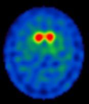 Bild rechts: Es zeigt sich eine reduzierte Dopamin-Transporterdichte im Putamen als Ausdruck eines M. Parkinson.