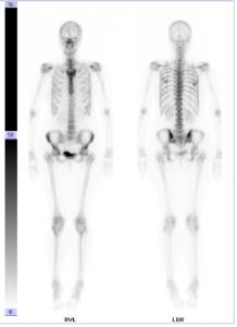 Skelettszintigraphie ohne krankhaften Befund