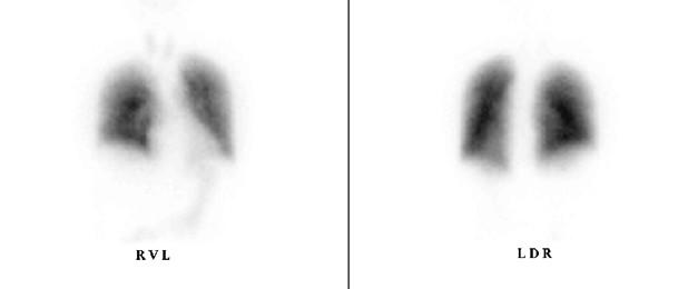 Bild: Blick von vorne (RVL) und von hinten (LDR) auf die Lunge –  eine Lungenembolie liegt nicht vor, die Lunge ist normal durchblutet
