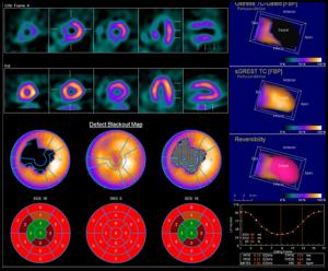 Bild: dargestellt ist die Durchblutung des Herzens in verschiedenen Schnittebenen – oben die Bilder unter Belastung, unten die Bilder in Ruhe