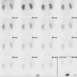 Bild: das Nierenszintigramm zeigt eine Abflussverzögerung der rechten Niere
