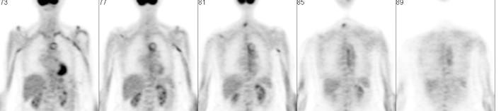 """Riesenzellarteriitis (Entzündung großer Gefäße mit Vorkommen sogenannter """"Riesenzellen""""). Typisch ist das """"Schienenphänomen"""" der Bauchschlagader (PET-Bild)"""