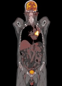 Bild: Bronchialkarzinom in der linken Lunge